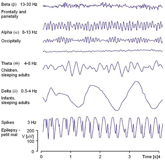 دسته بندی امواج مغزی بر اساس فرکانس