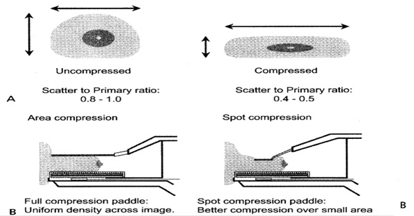 صورطیز جمیل استفاده-از-کاغذ-رادیولوژی