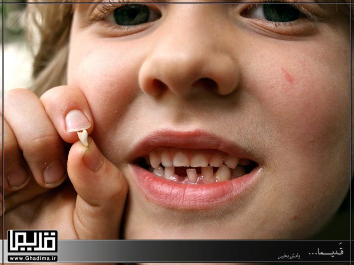 افتادن دندان شیری