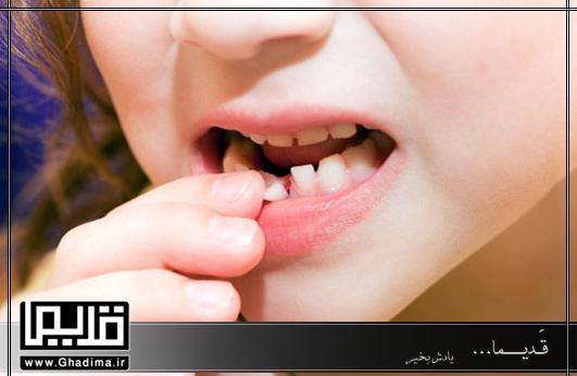 دندان شیری لق شده