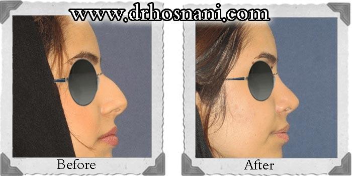 جراحی بینی دکتر حسنانی