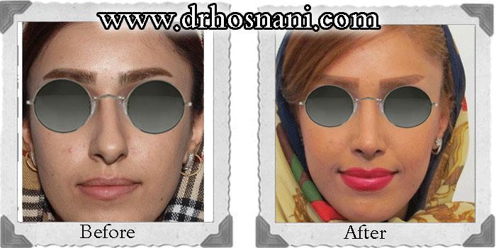 جراحی بینی دکتر حسنانی - اصلاح انحراف بینی - کوچک کردن بینی