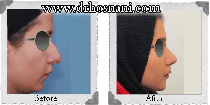 جراحی بینی دکتر حسنانی - بینی گوشتی با نتیجه طبیعی