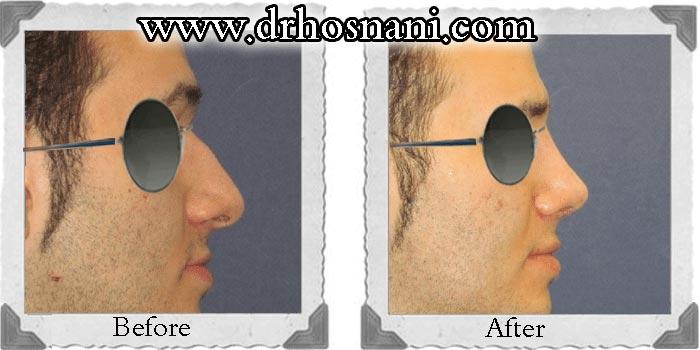 جراحی بینی دکتر حسنانی - عکس شماره 18