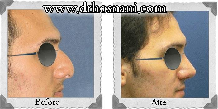 گالری جراحی بینی دکتر حسنانی - بینی گوشتی - مدل طبیعی - اصلاح پایین افتادگی نوک بینی - پر کردن محل اتصال بینی و پیشانی