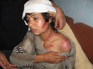 افغانستان بدترین کشور دنیا برای زنان