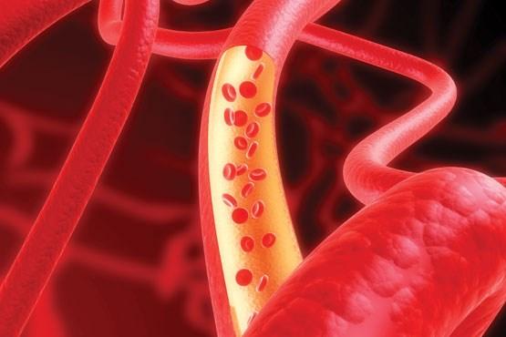 واسکولیت یا داروهای بدنسازی؟ , سلامت و پزشکی