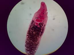 دانلود پاورپوینت بیماری  کرم دیکروسلیوم