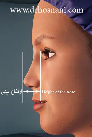 کاهش ارتفاع بینی با جراحی