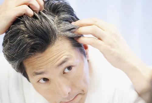 راههای پیشگیری از سفید شدن موها , سلامت و پزشکی