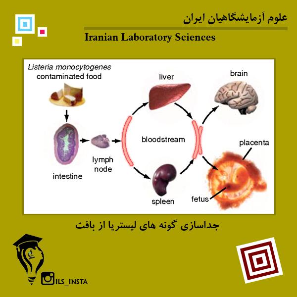 جداسازی گونه های لیستریا از بافت
