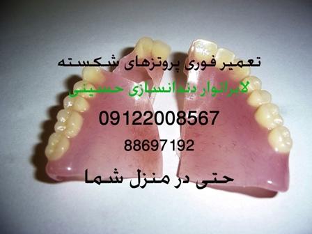 تعمیر دندان مصنوعی شکسته دندانسازی حسینی