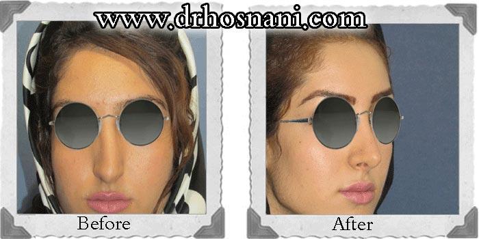 جراحی بینی - اصلاح انحراف بینی
