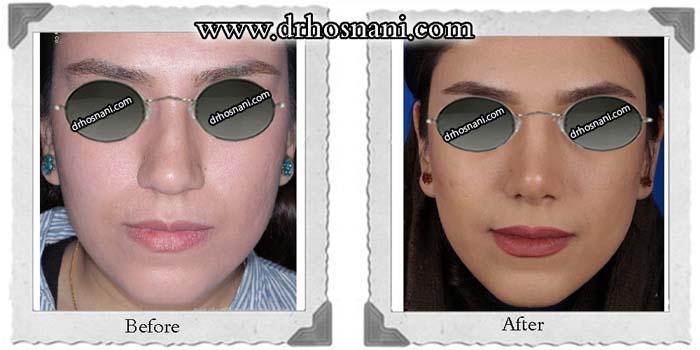 nose_surgery_120.jpg