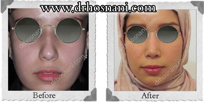 nose_surgery_123.jpg