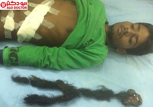 وحشت نوجوان هندی از دیدن انگل دو نیم کیلویی در بدنش , جالب و خواندنی