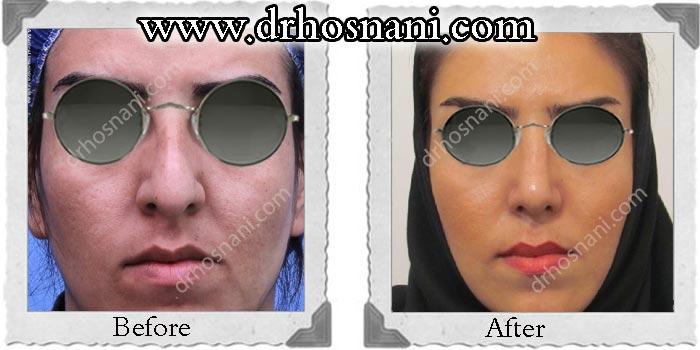 nose_surgery_124.jpg