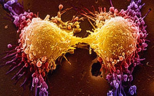 سرطان و راه های پیشگیری از آن