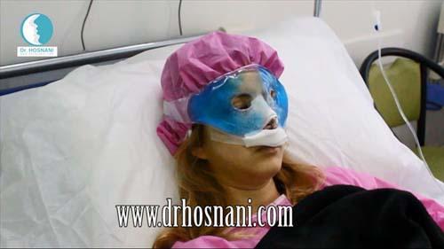 جراحی بینی دکتر حسنانی - بستری بعد از جراحی
