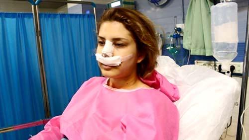 جراحی بینی دکتر حسنانی - بعد از جراحی