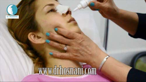 جراحی بینی دکتر حسنانی - ترخیص از کلینیک