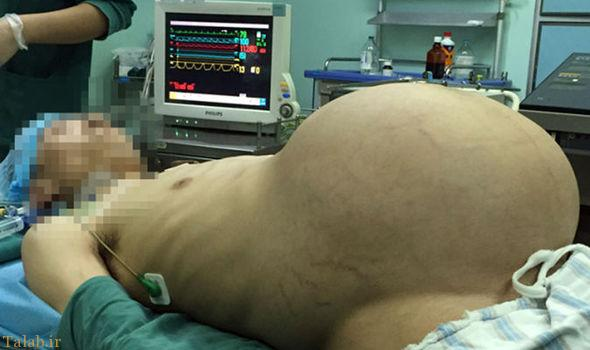 خارج کردن بزرگترین تومور جهان از بدن یک مرد چینی , تصاویر دیدنی