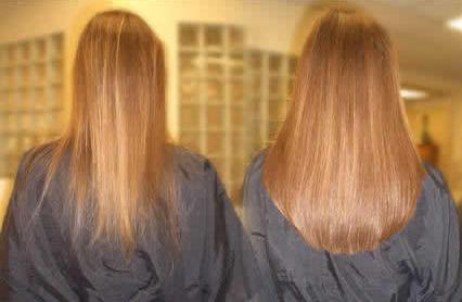 استنشن مو و انواع آن
