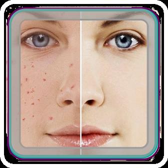 راه های درمان جوش صورت