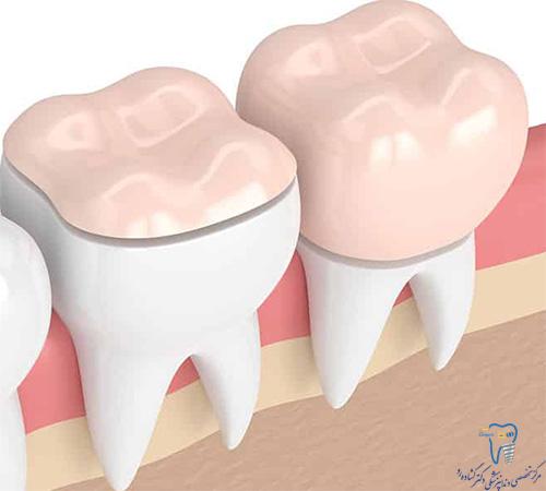 اگر روکش دندان در آمد، چه باید کرد؟