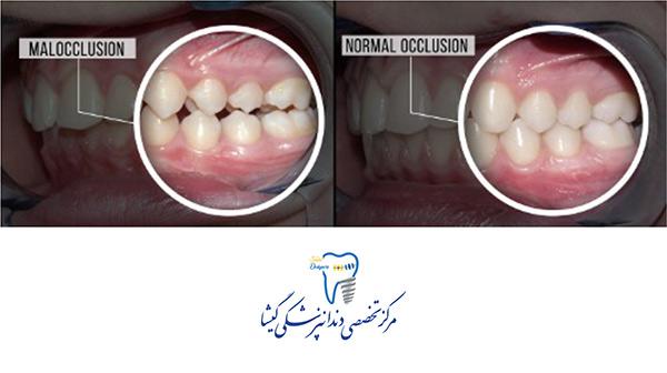 چرا باید جای خالی دندان را پر کنیم؟