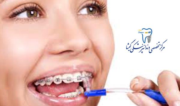 آماده شدن برای گذاشتن براکت ارتودنسی یا سیم کشی دندانها
