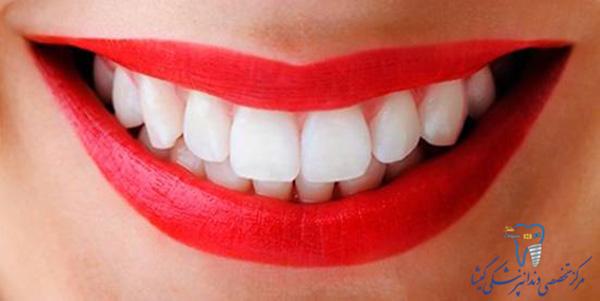 اصلاح سه ویژگی مهم دندان برای زیباتر کردن لبخند