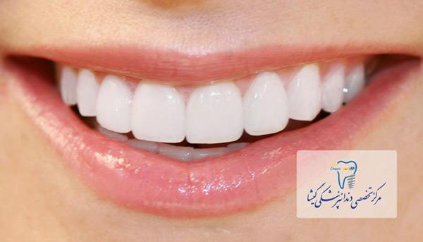 عوامل پنهان تاثیر گذار بر زیبایی لمینت سرامیکی دندان