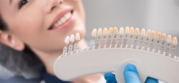 چه افرادی شرایط لمینت کردن دندان را دارند؟