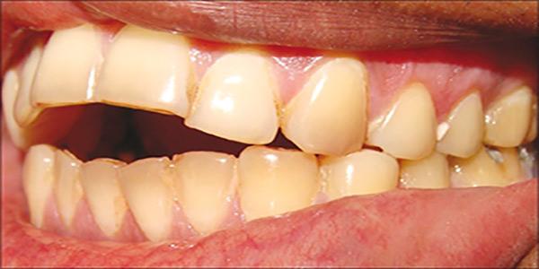 درمانهای اپن بایت یا به هم نرسیدن دندانهای جلویی در بزرگسالان