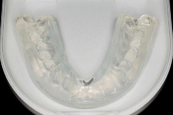 تمیز کردن و مراقبت از نایت گارد یا محافظ دهان شبانه