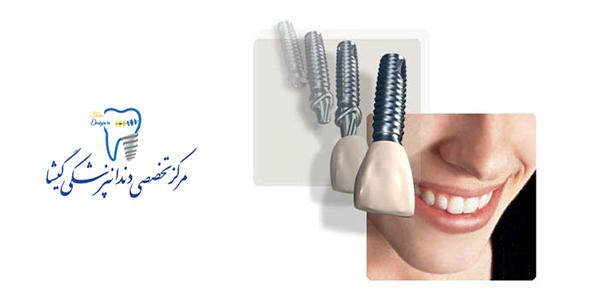 هزینه کاشت ایمپلنت دندان