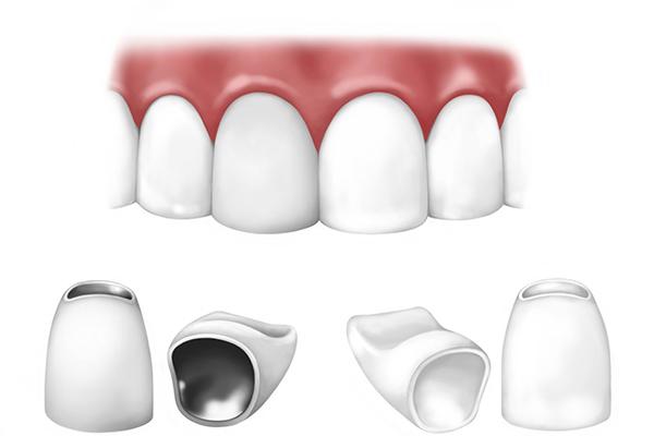 کاربردهای روکش دندان در دندانپزشکی