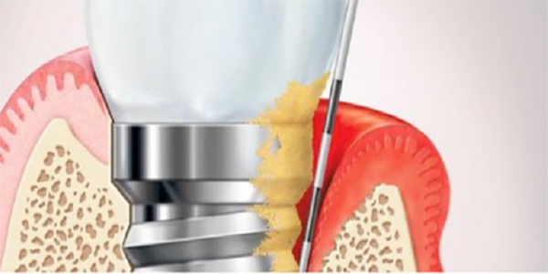 عفونت اطراف ایمپلنت دندان