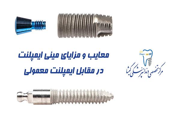 معایب و مزایای مینی ایمپلنت در مقابل ایمپلنت دندان معمولی