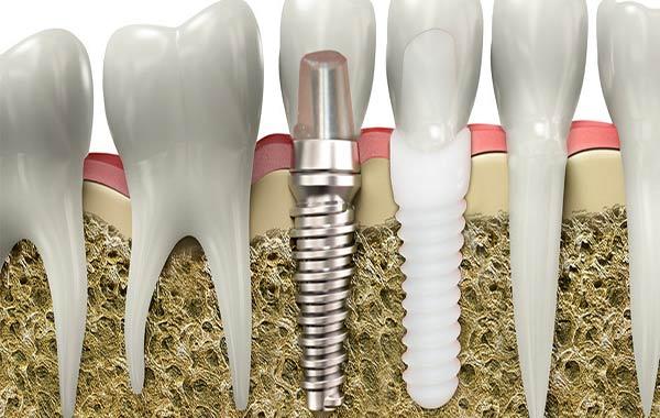 ایمپلنت دندان تیتانیومی بهتر است یا زیرکونیا؟