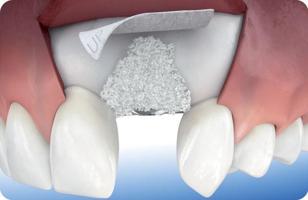 بزرگ کردن ستیغ فک پیش از کاشت ایمپلنت دندان