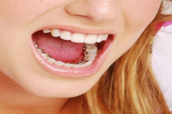 براکت پشت دندانی معایب و مزایای براکت پشت دندانی یا لینگوال