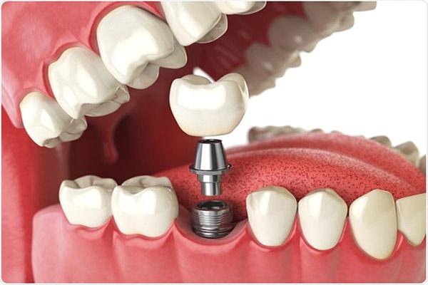 شل شدن پیچ ایمپلنت دندان
