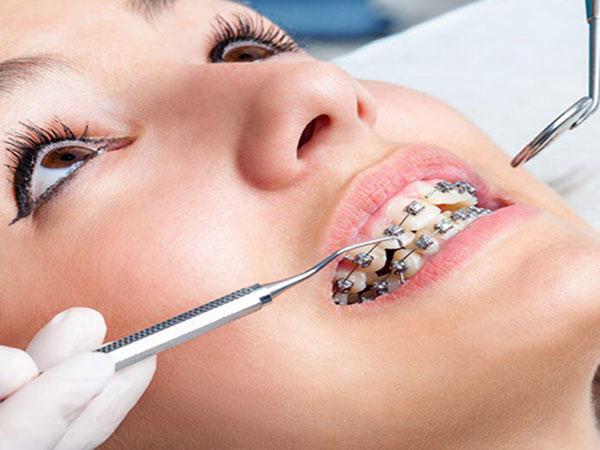 همه چیز در مورد ارتودنسی دندانها