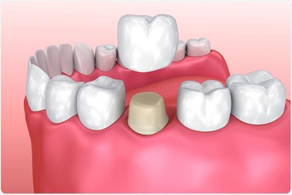 حساسیت دندان پس از روکش یا پر کردن دندان
