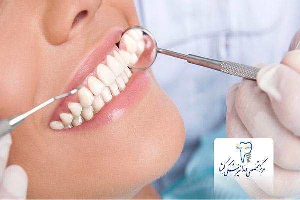 نکاتی که پیش از کاشت ایمپلنت دندان باید در نظر بگیرید.