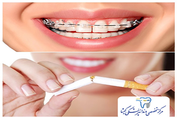 تاثیر سیگار بر ارتودنسی