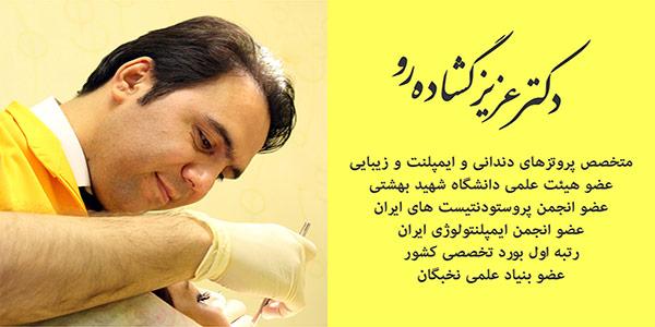 متخصص ایمپلنت دندان خوب در تهران