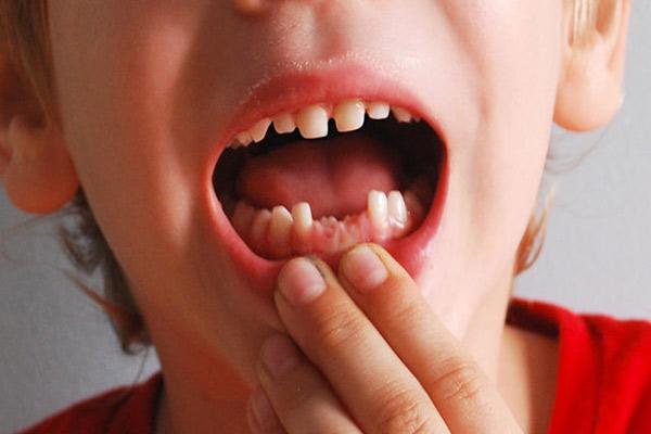 دلایل کشیدن دندان چیست؟